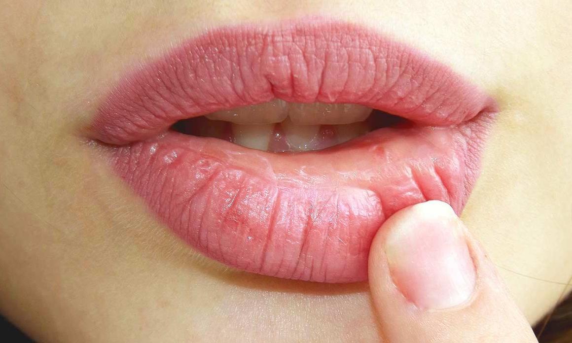 Lèvres pulpeuses : Astuces beauté